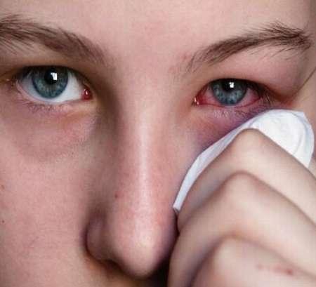 اگر آشوب چشم میں پانی کا استعمال مضر ہو تو کیا حکم ہے؟